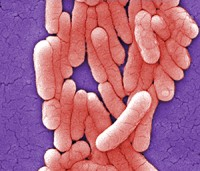 Scanning electron micrograph shows a colony of Salmonella typhimurium bacteria. Photo courtesy of CDC, Janice Haney Carr